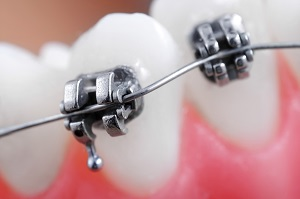 Fees for orthodontic treatment in Impressio-Med Dental Clinic